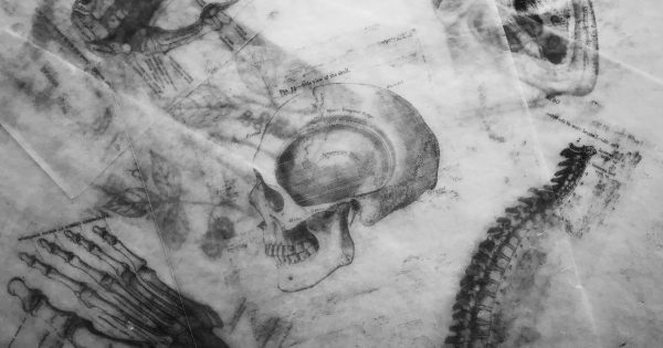 a black and white image of a skull and some bones